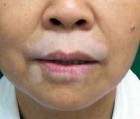 北京治疗白癜风专科医院:面部白癜风的诱因有哪些